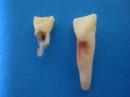 乳歯3.jpg